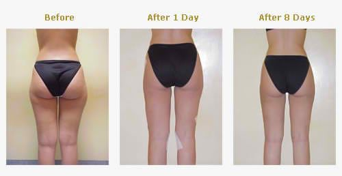 Liposuction Cost In West Palm Beach