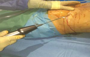 Liposuction training course