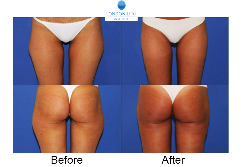 liposuction outer thighs