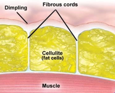cellulite structure