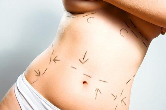 Everything You Need To Know About Liposuction