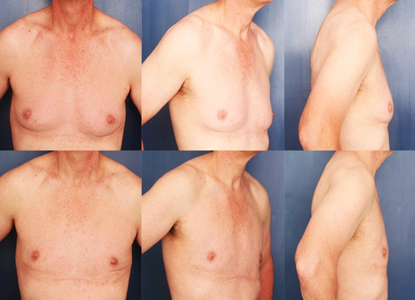 Male breast reduction in London