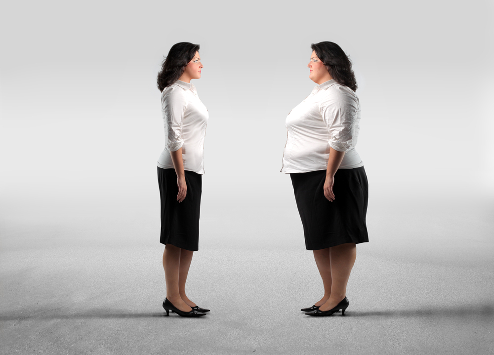 Benefits of weight-loss surgery