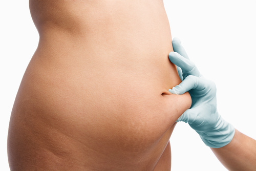 Weight-loss surgery in London