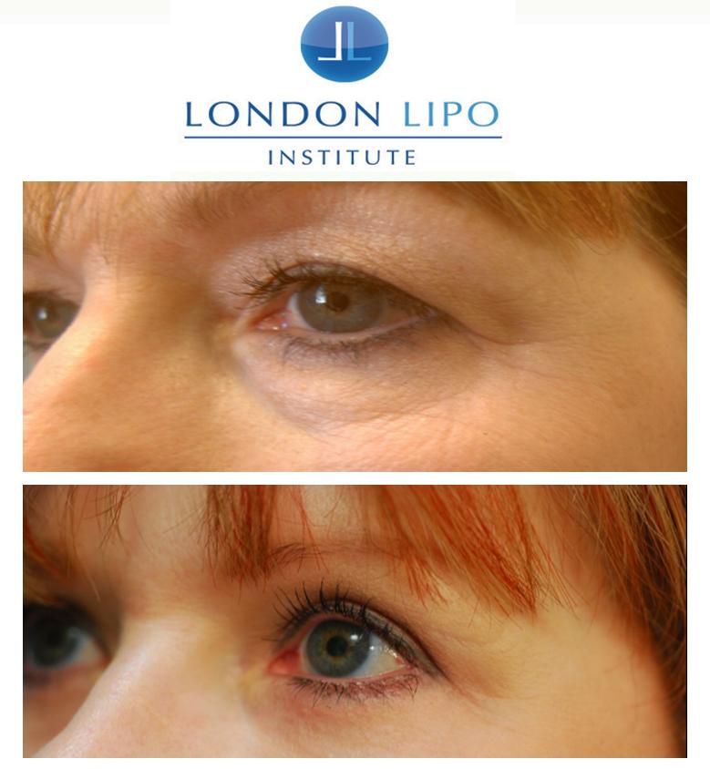 Blepharoplasty London