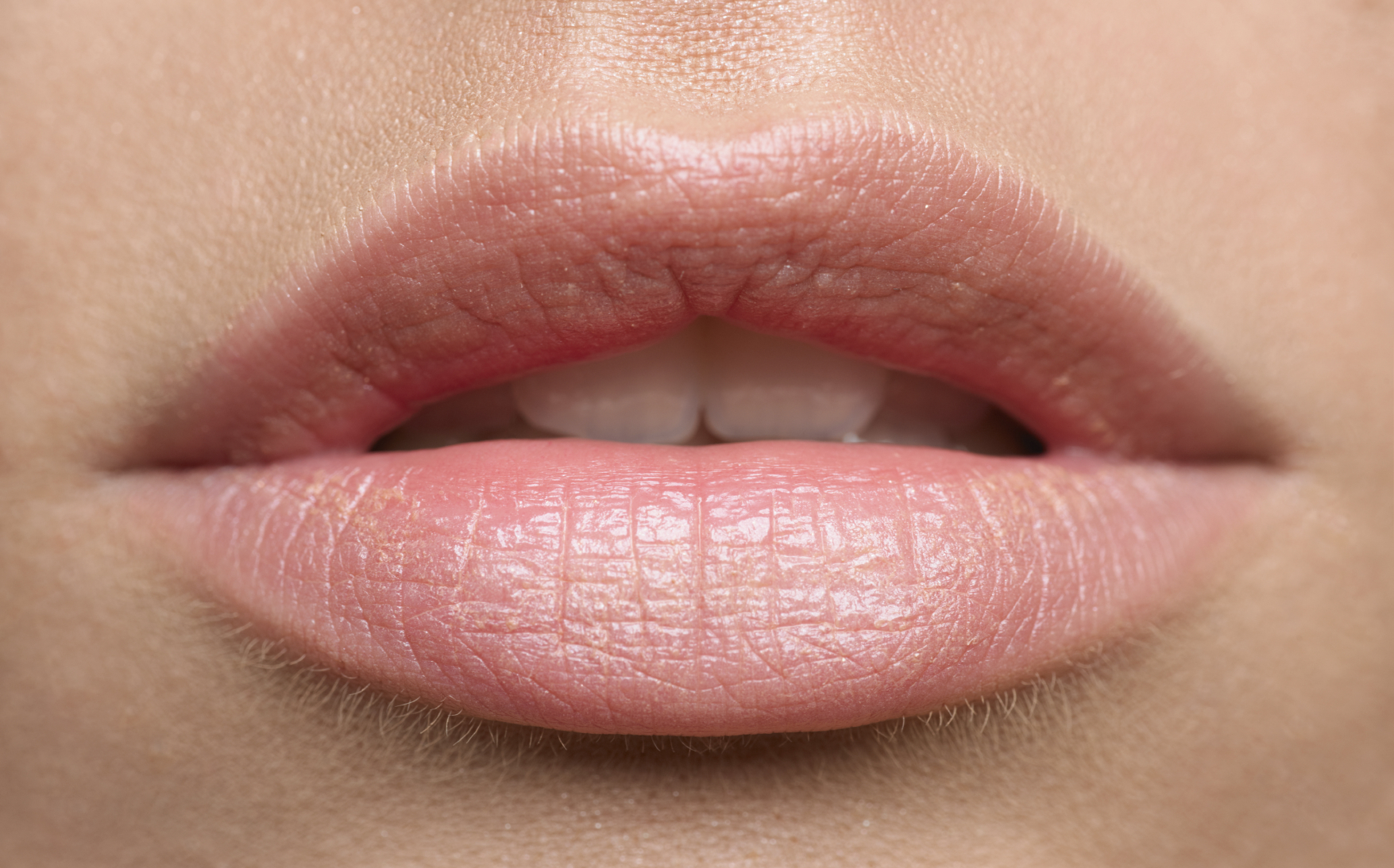 Lips for Life – Lip implants