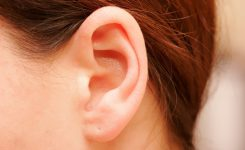 The benefits of otoplasty